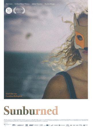 Sunburned